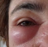 Eine Schwellung nach einem Bienenstich muss nicht zwangsläufig eine Allergie bedeuten